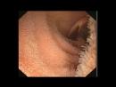 11 Глава Извивающийся тонкий кишечник. Очаровательный кишечник.