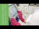 Результаты работ - лазерное лечение стрий