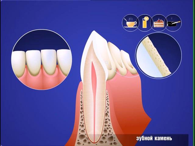 Образование зубного налета