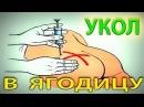 Укол в Ягодицу Внутримышечная инъекция малиновский уколвмышцу