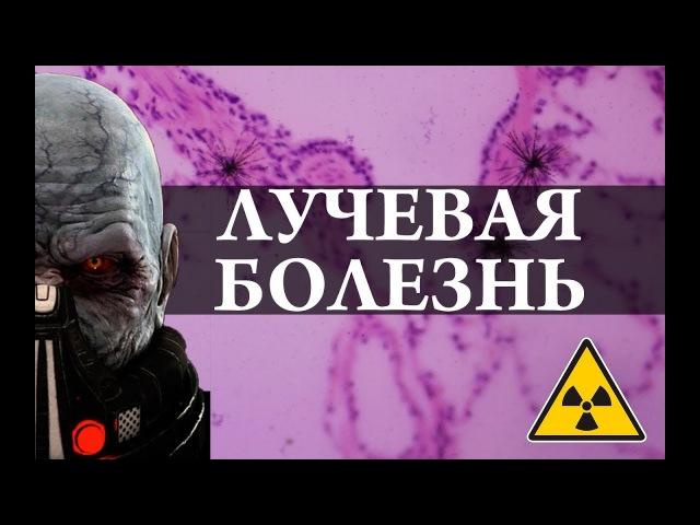 Лучевая болезнь Радиация Химия просто kextdfz jktpym hflbfwbz bvbz ghjcnj