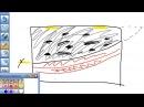 Ультразвуковые морфотипы молочных желез