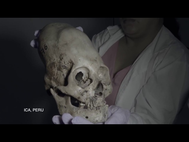 FINALLY DNA Results Of The Paracas Elongated Skulls Of Peru 2018