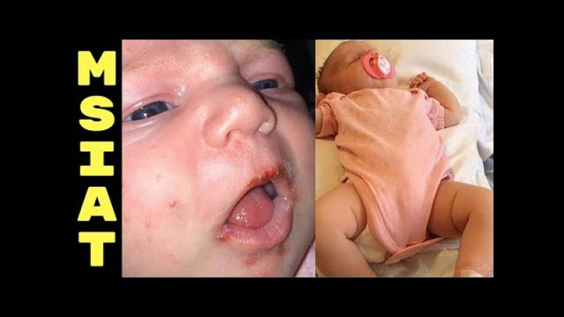 Someone Kissed The Baby On Her Lips Which Nearly Killed Her! Why Find Out The Reason Here!