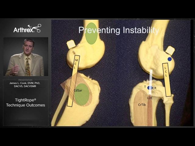 Обсуждение техники TightRope CCL / TightRope® Technique Outcomes