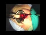 Операция на перегородке носа + носовой клапан. Часть I .