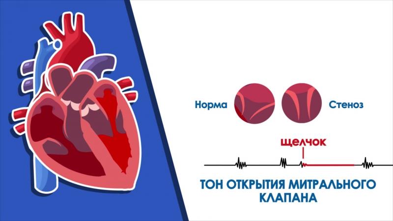 Аускультация сердца. Дополнительные тоны