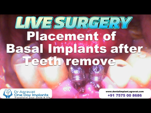 Lower Front Mobile Teeth remove Replacement with Basal Implants How dental Implants surgery are