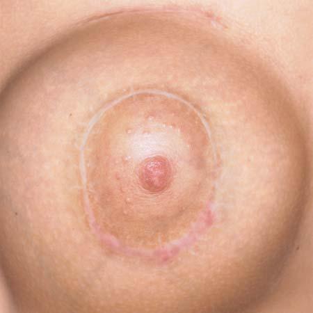 после мастэктомии с имплантантом груди