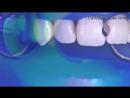 Class 3 composite restoration. Эстетическая стоматология.