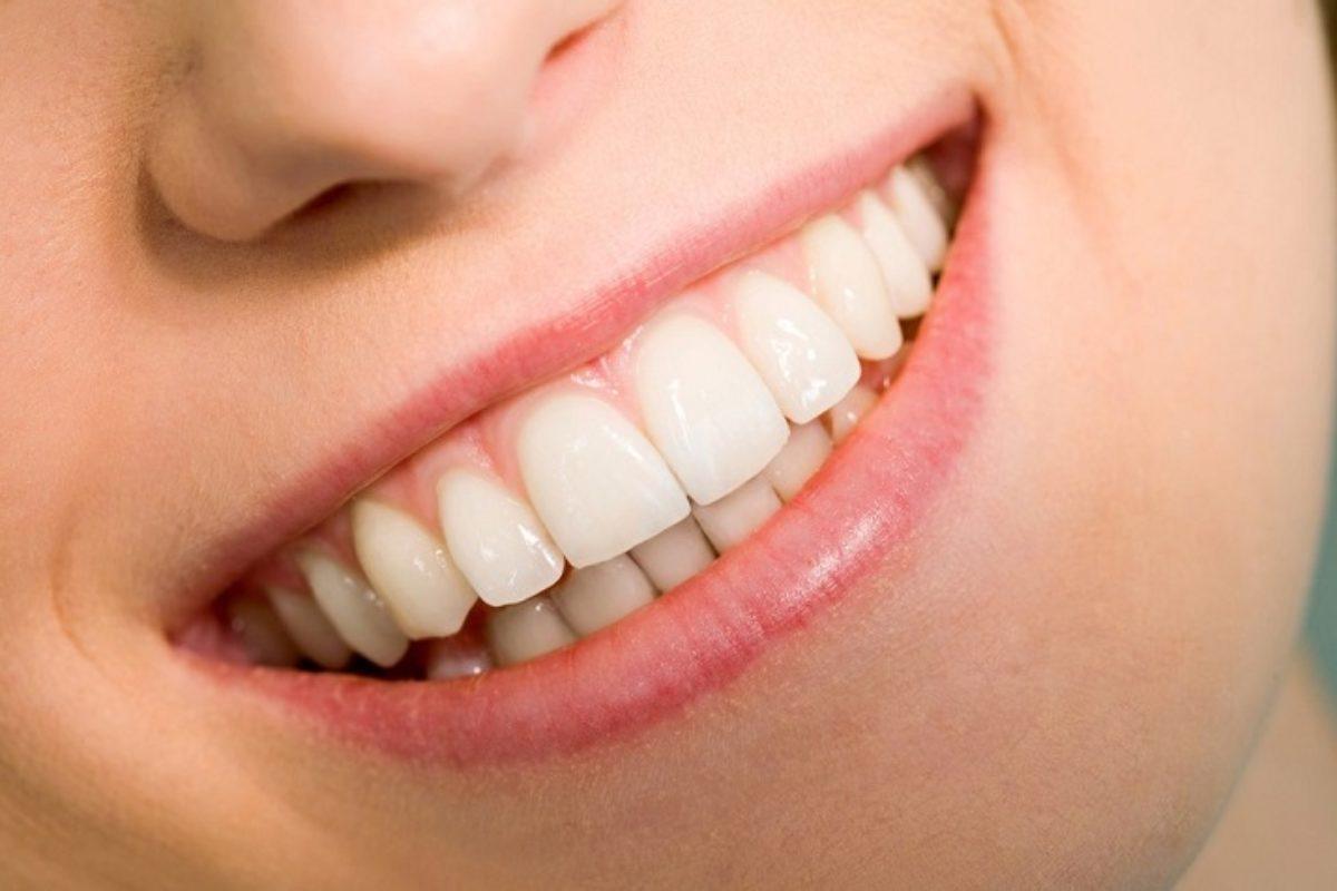 Что такое зубной кариес?