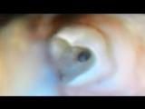 первые тесты микроскопа. визулизировал отломок в мб2