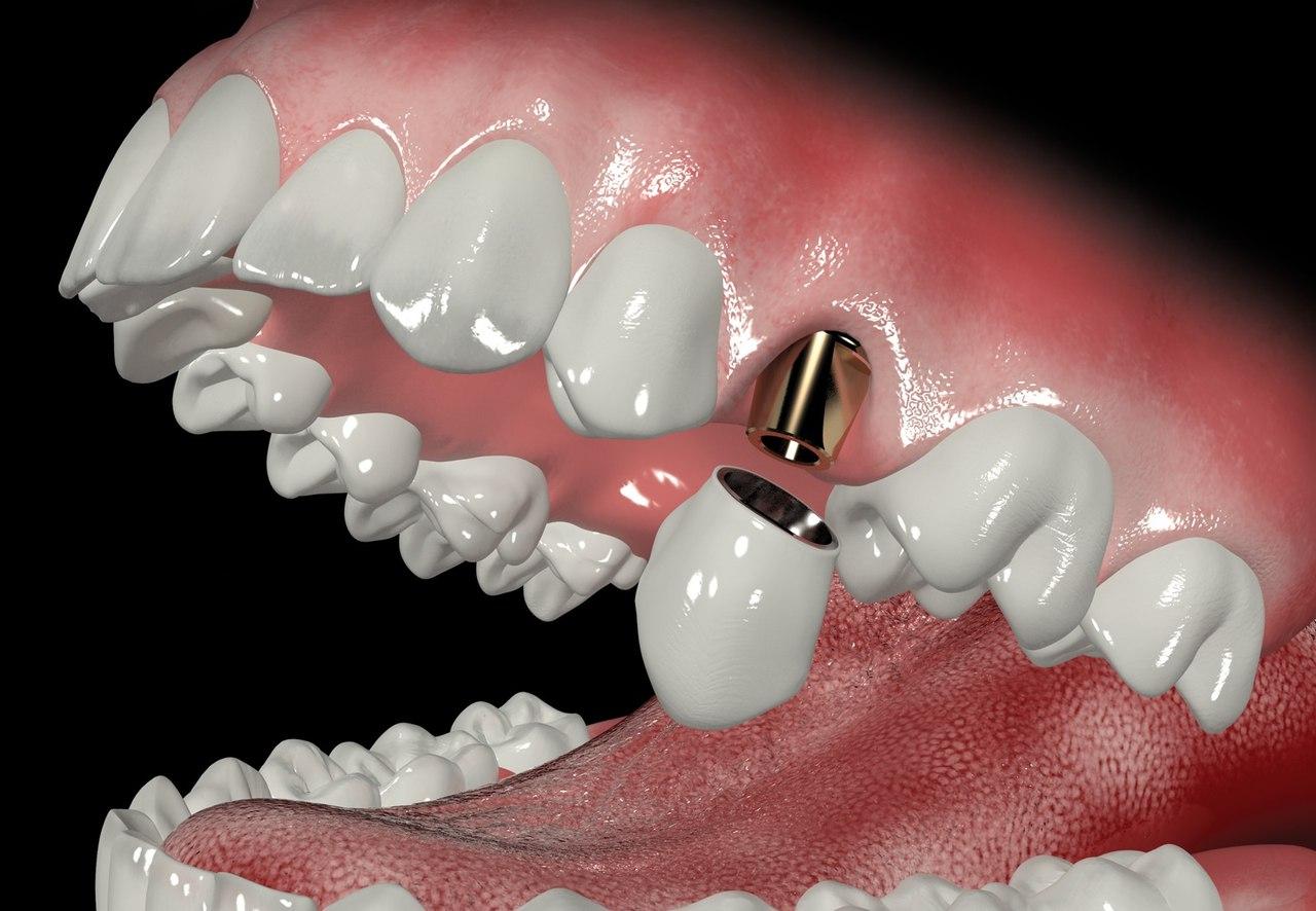 Что такое абатмент имплантата зубов?