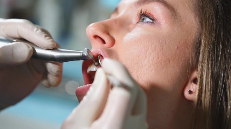 Чистка зубов Детская и взрослая центральная стоматология