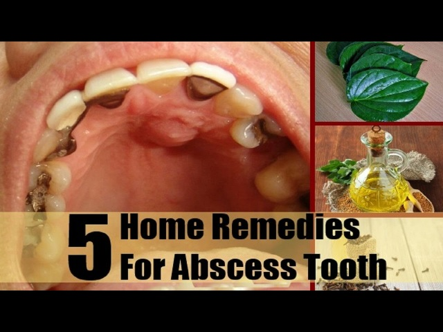 5 Home Remedies for an Abscessed Tooth.