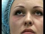 ПРОДВИНУТАЯ РИНОПЛАСТИКА, ОТОПЛАСТИКА И КОНТУРНАЯ ПЛАСТИКА ЛИЦА 2014, к.м.н., врача-дерматокосметолога Павленко Оксаны Юрьевны