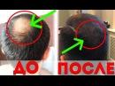 Миноксидил для волос Остановил облысение за 6 месяцев РЕЗУЛЬТАТ ОГОНЬ 😱