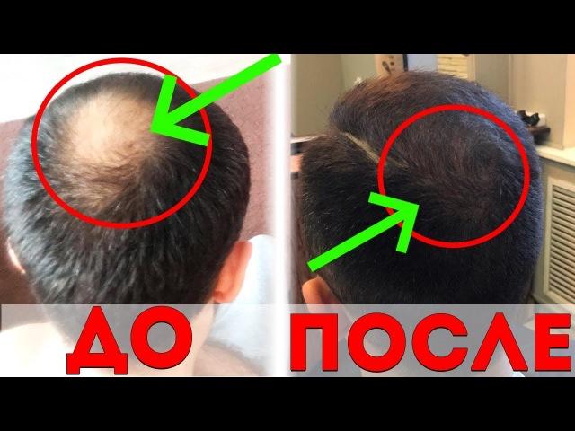 Миноксидил для волос! Остановил облысение за 6 месяцев. РЕЗУЛЬТАТ ОГОНЬ!😱