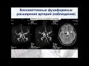 Нейрохирургия - Аневризмы головного мозга у детей