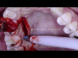 Implante Imediato Carga Imediata Associado à Reconstrução Tecidual Região do 41. Parte II Full HD