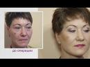 Подтяжка лица невероятный результат Пластическая операция до и после