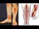 Пораженные сосуды - ампутация ног. Большие дозировки пептидов сотворили чудо. Смотрите отзыв.