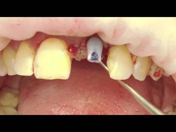 Изготовление временной коронки на имплант прямым методом