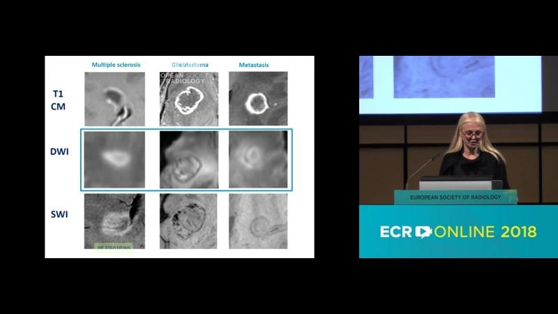 02 - Ring-enhancing brain lesions