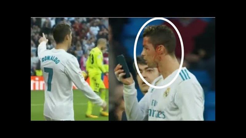 Cristiano Ronaldo (1st Goal No Celebration and 2nd Goal Gets Injured and starts bleeding)