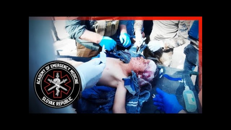 Wounded Kid Blast Injuries Iraq Mosul Academy of Emergency Medicine
