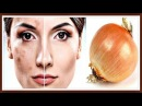 Репчатый ЛУК от ПИГМЕНТНЫХ ПЯТЕН на лице СУПЕР эффективная маска от ПИГМЕНТАЦИИ и ВЕСНУШЕК