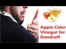 Apple Cider for Dandruff | Home Remedies to Get Rid of Dandruff Naturally
