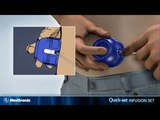 Medtronic Infusion system Quick-Set
