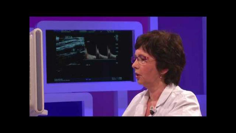 How to perform basic ultrasound carotid examination