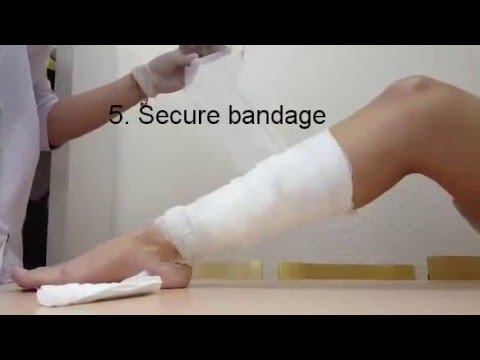 The imposition of a pressure bandage on the shin