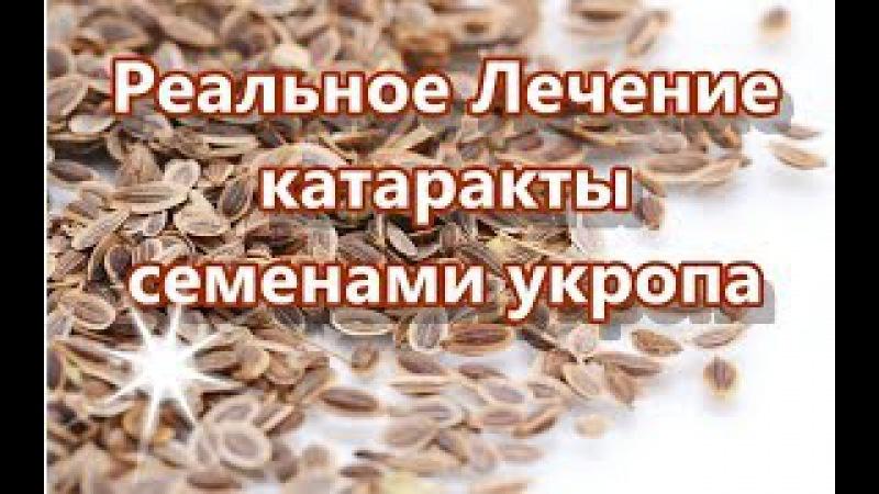 Реальное Лечение катаракты семенами укропа