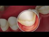?Разница между обычной и глубокой чисткой зубов. ☝... Стоматология Казани 20.10.2017