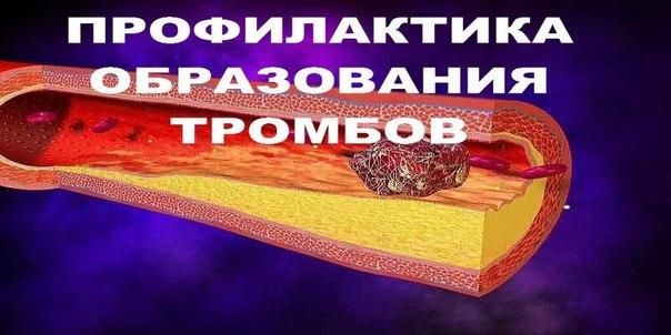 ПРОФИЛАКТИКА ОБРАЗОВАНИЯ ТРОМБОВ.