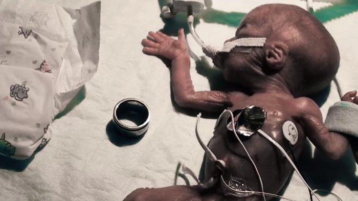 Рожденная 300-граммовая девочка выжила и вот какая она сейчас
