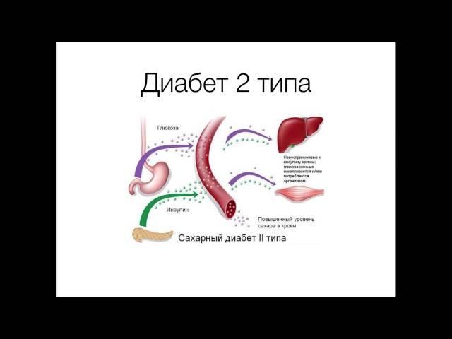 Что такое диабет 2 типа простым языком