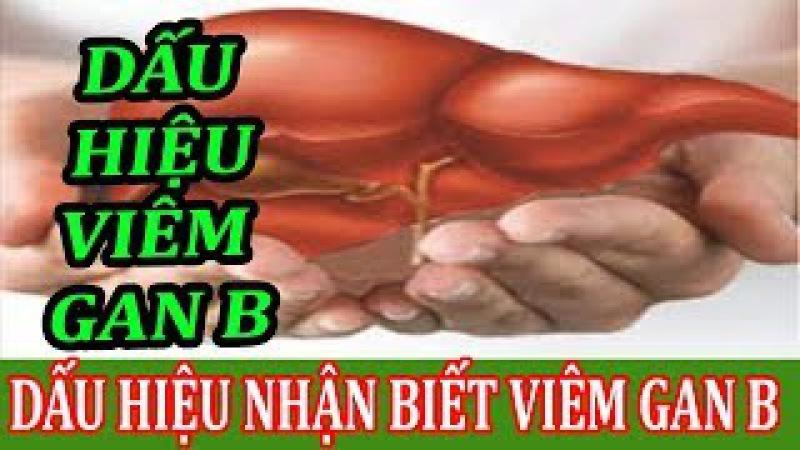 Viêm gan B - Nguyên nhân, triệu chứng và cách điều trị | Bệnh viêm gan B