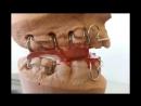 Функциональные аппараты итальянской ортодонтической лаборатории ORTHO REM