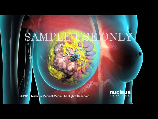 Рак молочной железы | Хирургическое удаление опухоли