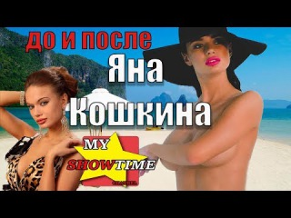 ЯНА КОШКИНА ГОЛАЯ ПРАВДА №2 До и После ПЛАСТИКИ  my showtime #8