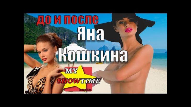 ЯНА КОШКИНА ГОЛАЯ ПРАВДА №2 До и После ПЛАСТИКИ my showtime 8