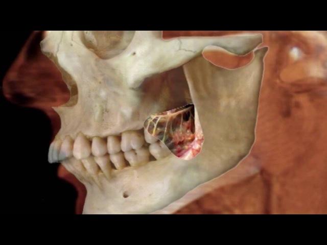Анестезия мандибулярного отверстия от CRYSTAL farma