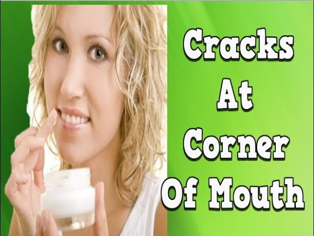 Cracks At Corner Of Mouth, Chelitis, Antifungal Cream For Angular Cheilitis, Treat Angular Cheilitis