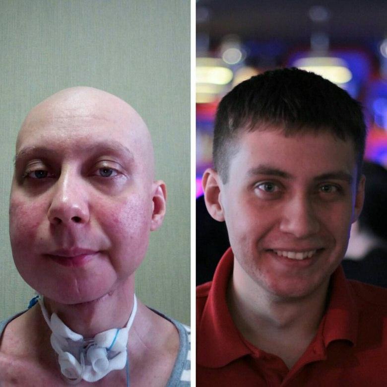Томич вновь просит о финансовой помощи для лечения рака языка
