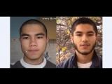 Результаты от миноксидила - фото до и после!