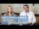 Как лечить косточку на большом пальце ноги личный опыт Подагра ли это Нужно ли делать операцию